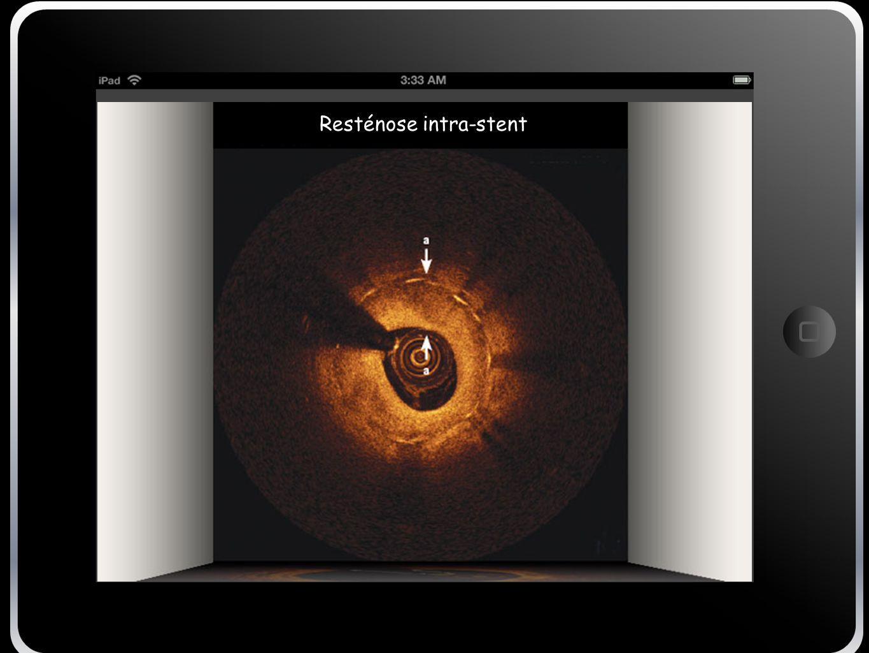 Resténose intra-stent