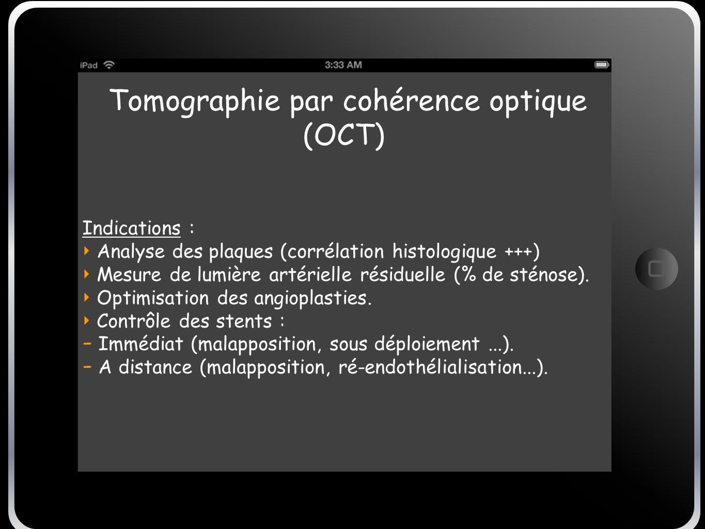 Tomographie par cohérence optique (OCT) Indications : Analyse des plaques (corrélation histologique +++) Mesure de lumière artérielle résiduelle (% de