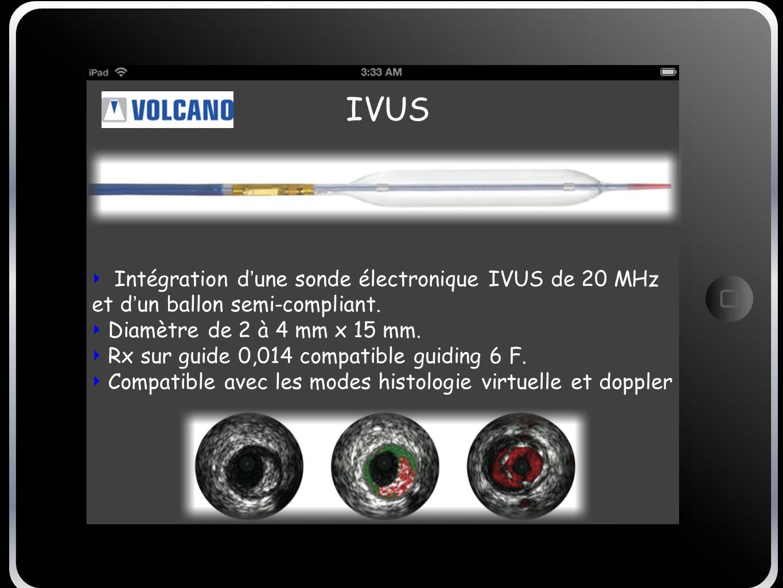 IVUS Intégration d une sonde électronique IVUS de 20 MHz et d un ballon semi-compliant. Diamètre de 2 à 4 mm x 15 mm. Rx sur guide 0,014 compatible gu