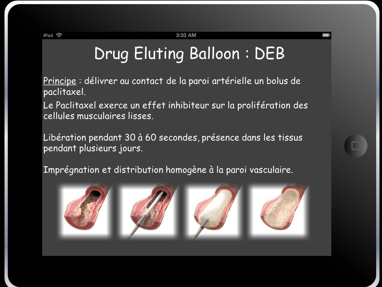 Drug Eluting Balloon : DEB Principe : délivrer au contact de la paroi artérielle un bolus de paclitaxel. Le Paclitaxel exerce un effet inhibiteur sur