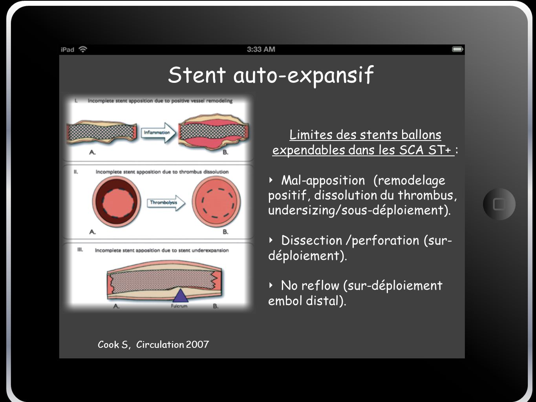 Stent auto-expansif Cook S, Circulation 2007 Limites des stents ballons expendables dans les SCA ST+ : Mal-apposition (remodelage positif, dissolution