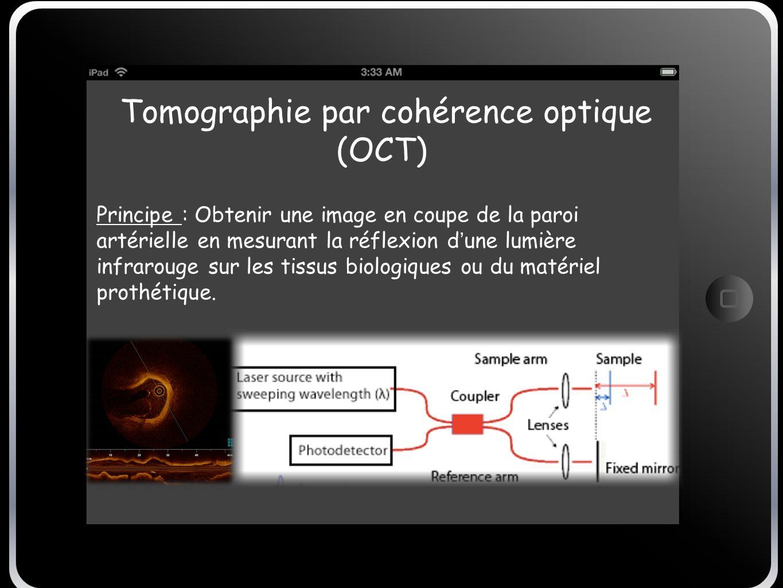 Tomographie par cohérence optique (OCT) Principe : Obtenir une image en coupe de la paroi artérielle en mesurant la réflexion d une lumière infrarouge