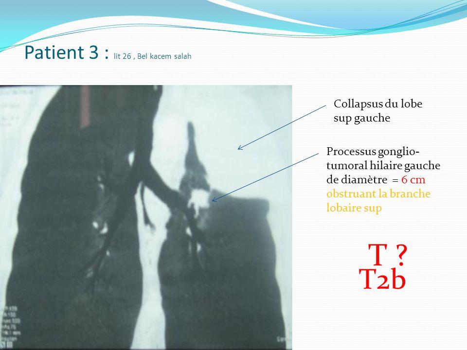 Patient 3 : lit 26, Bel kacem salah Processus gonglio- tumoral hilaire gauche de diamètre = 6 cm obstruant la branche lobaire sup Collapsus du lobe sup gauche T2b T ?