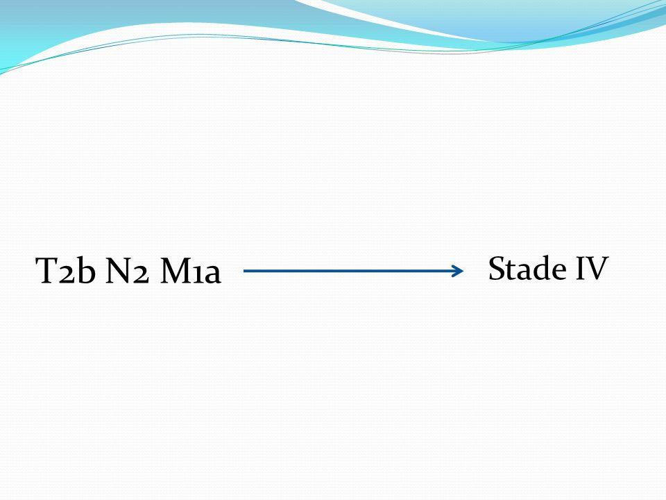 T2b N2 M1a Stade IV