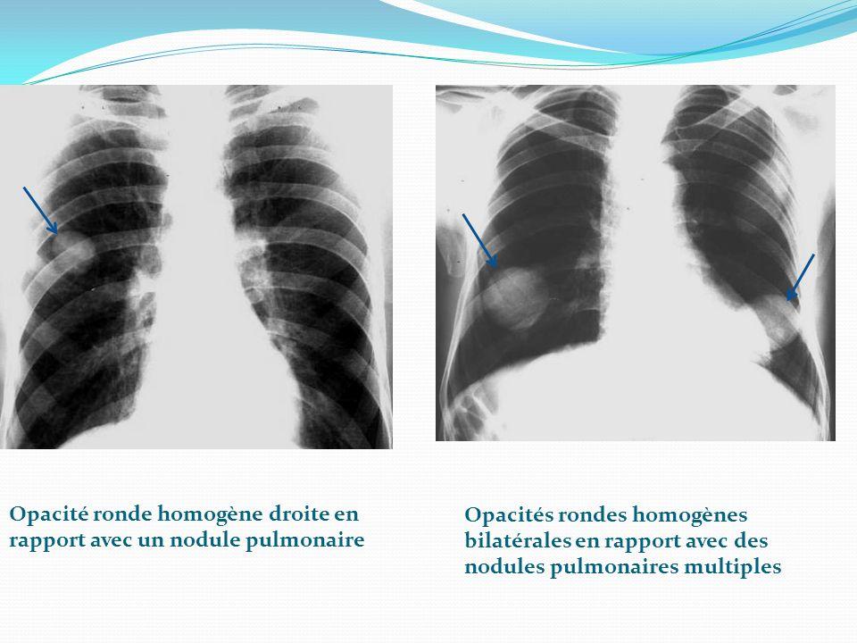 Opacité ronde homogène droite en rapport avec un nodule pulmonaire Opacités rondes homogènes bilatérales en rapport avec des nodules pulmonaires multiples