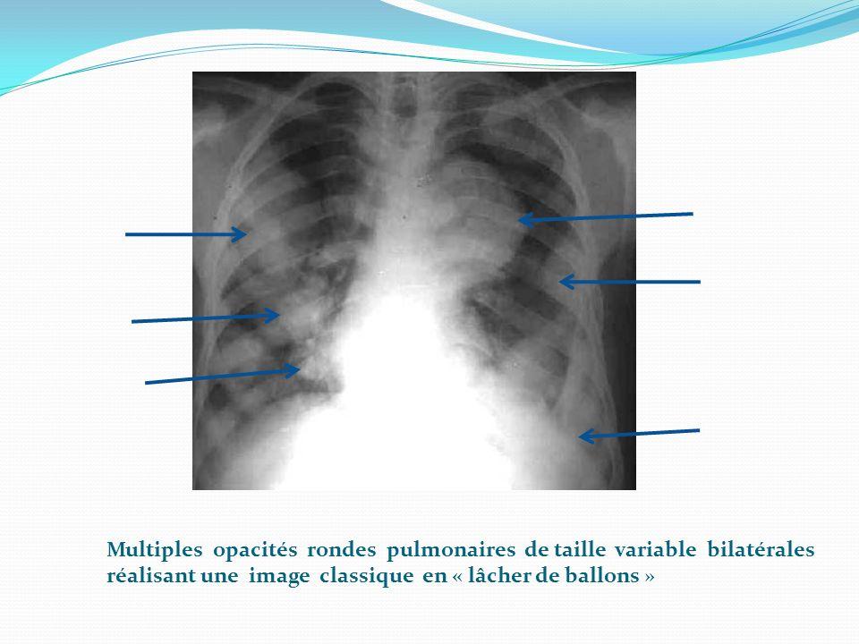 Multiples opacités rondes pulmonaires de taille variable bilatérales réalisant une image classique en « lâcher de ballons »