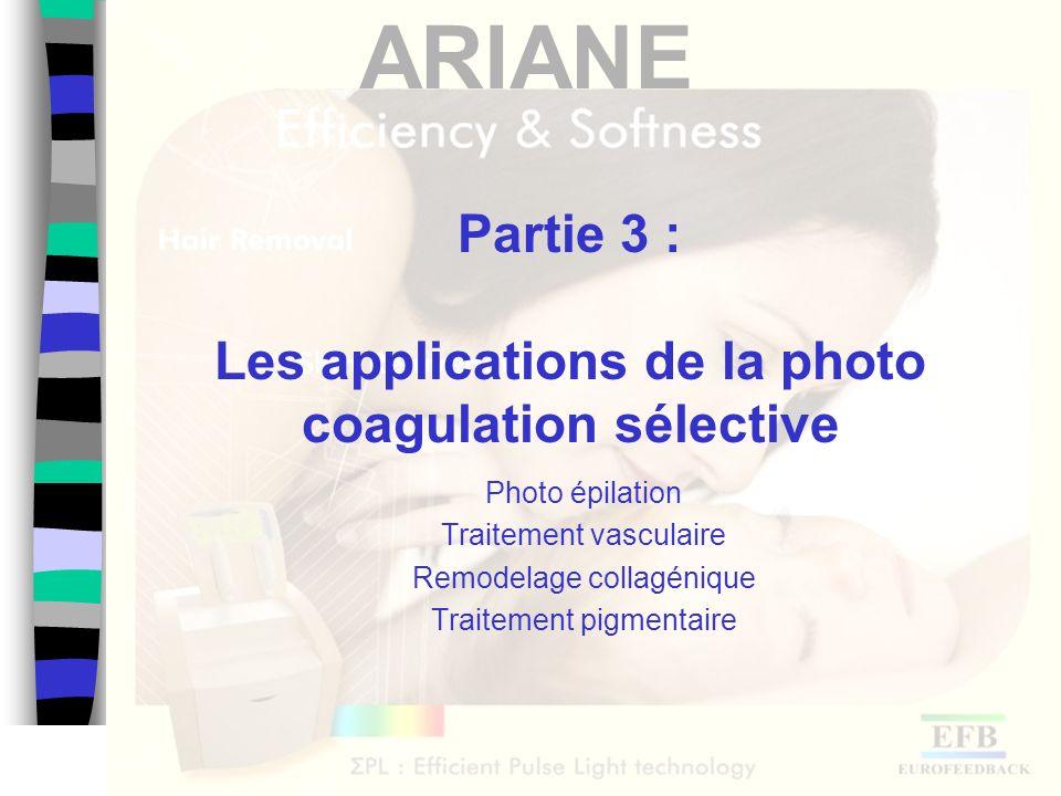 ARIANE Partie 3 : Les applications de la photo coagulation sélective Photo épilation Traitement vasculaire Remodelage collagénique Traitement pigmenta