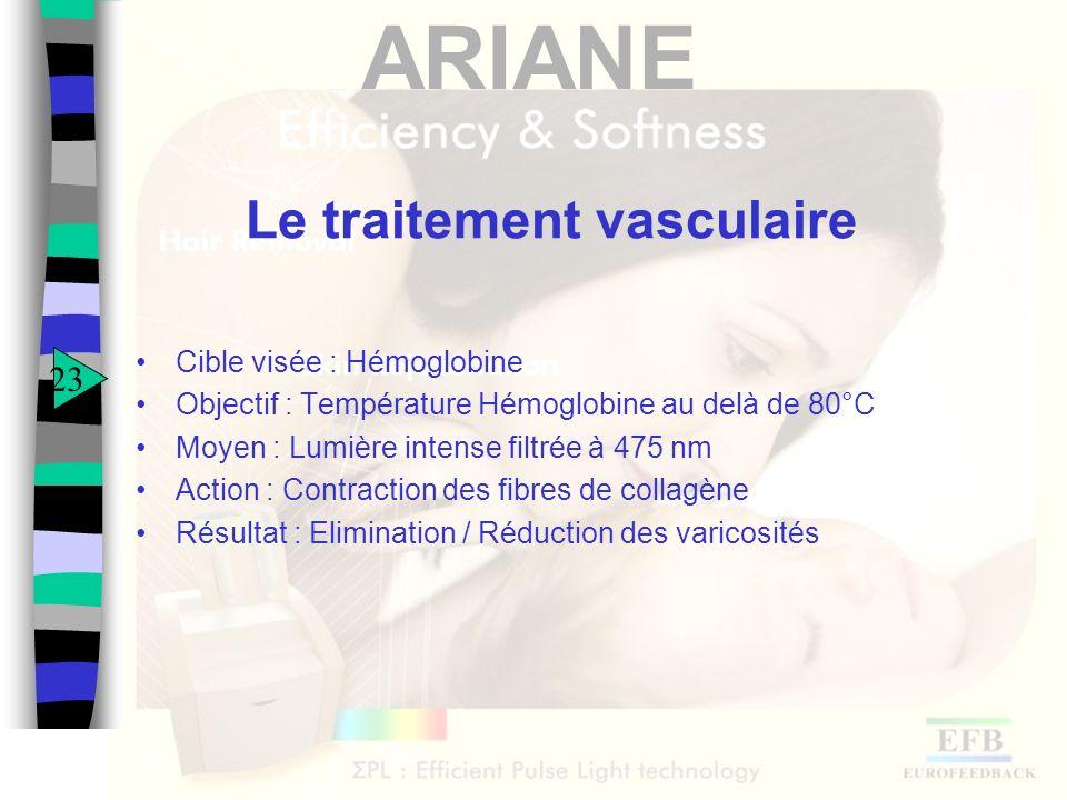 ARIANE Le traitement vasculaire Cible visée : Hémoglobine Objectif : Température Hémoglobine au delà de 80°C Moyen : Lumière intense filtrée à 475 nm