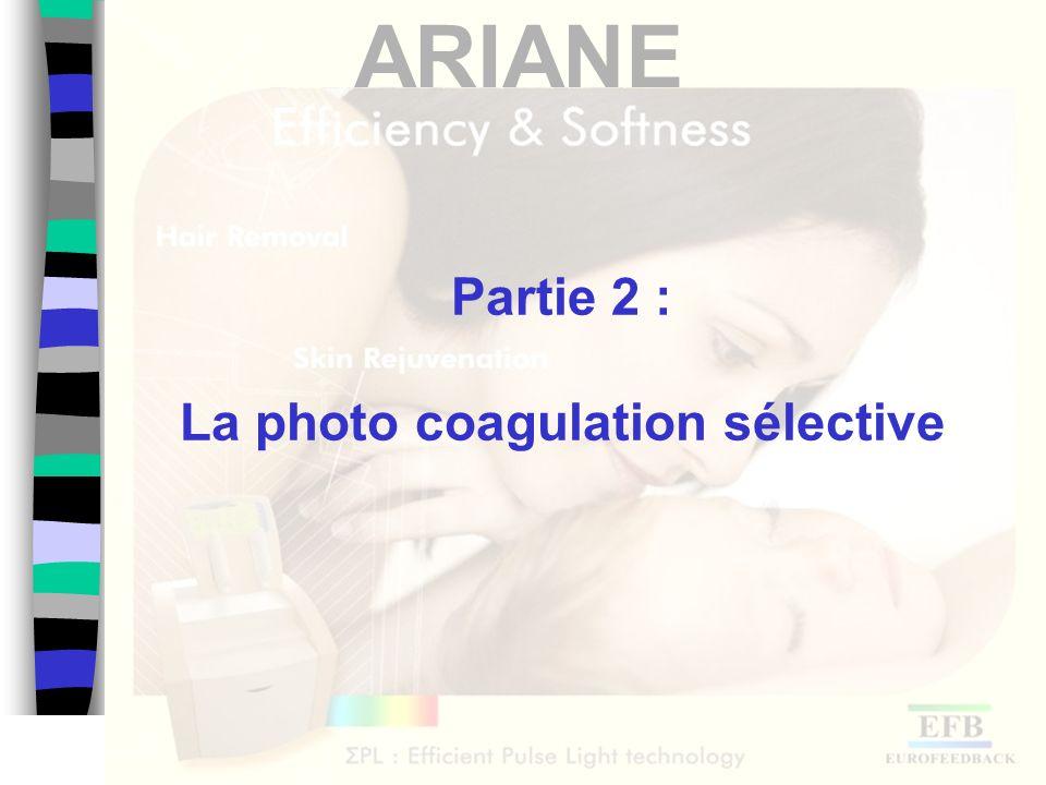 ARIANE Exemple de traitement Avant 30 10 jours après