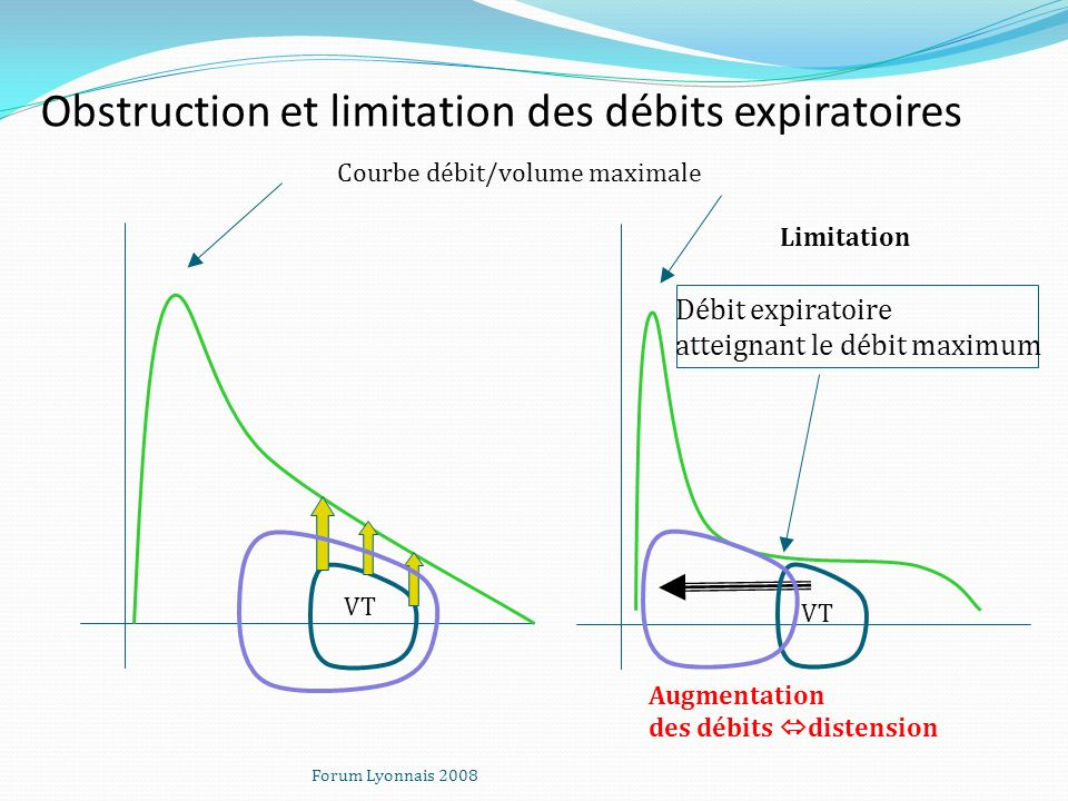 Obstruction et limitation des débits expiratoires Limitation Débit expiratoire atteignant le débit maximum Courbe débit/volume maximale VT Augmentatio