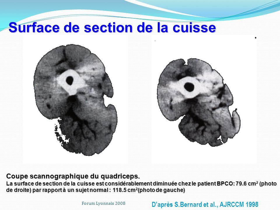 Forum Lyonnais 2008 Coupe scannographique du quadriceps. La surface de section de la cuisse est considérablement diminuée chez le patient BPCO: 79.6 c