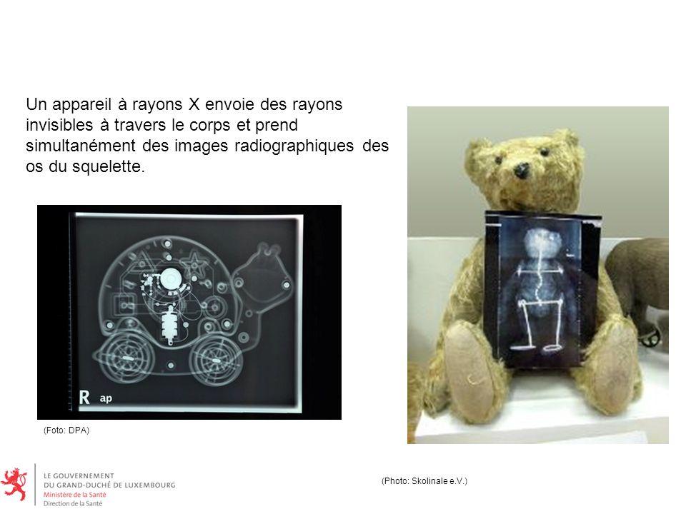 Un appareil à rayons X envoie des rayons invisibles à travers le corps et prend simultanément des images radiographiques des os du squelette.