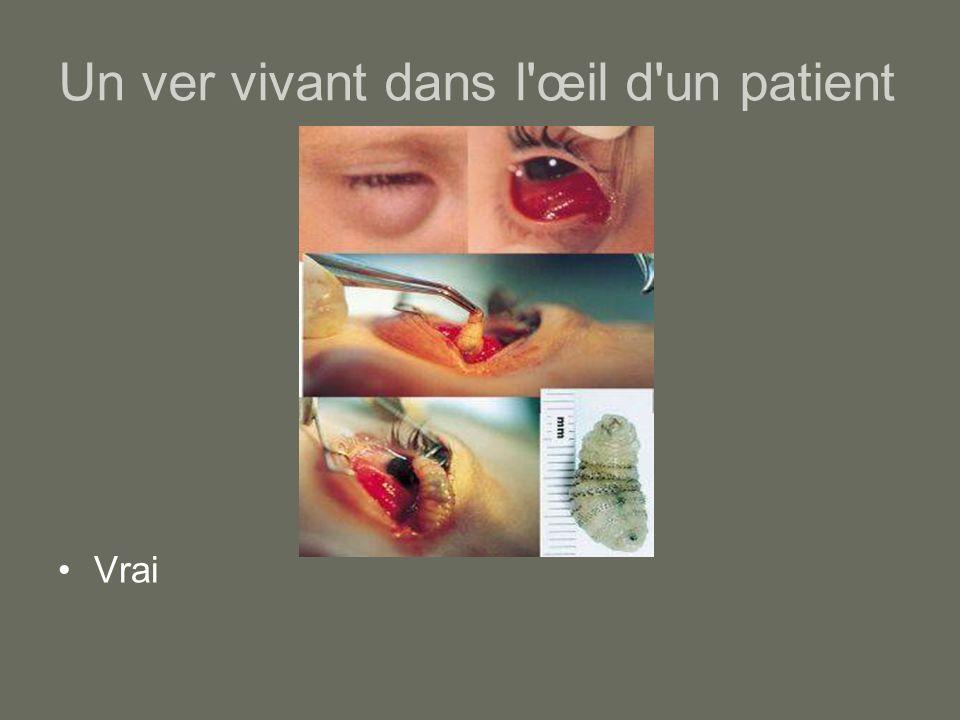 Un ver vivant dans l'œil d'un patient Vrai