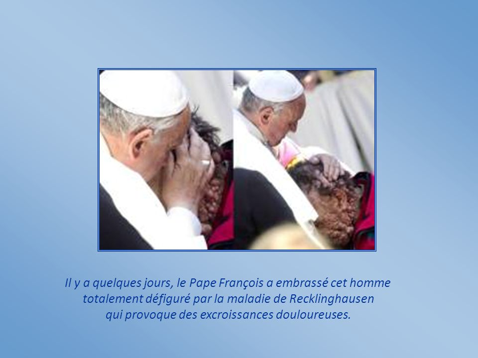 Il y a quelques jours, le Pape François a embrassé cet homme totalement défiguré par la maladie de Recklinghausen qui provoque des excroissances douloureuses.