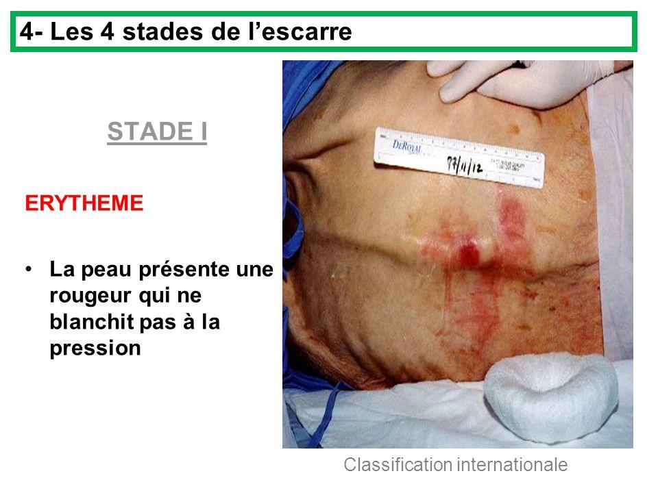 STADE I ERYTHEME La peau présente une rougeur qui ne blanchit pas à la pression 4- Les 4 stades de lescarre Classification internationale