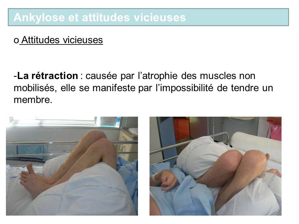 o Attitudes vicieuses -La rétraction : causée par latrophie des muscles non mobilisés, elle se manifeste par limpossibilité de tendre un membre. Ankyl