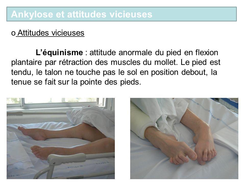 o Attitudes vicieuses Léquinisme : attitude anormale du pied en flexion plantaire par rétraction des muscles du mollet. Le pied est tendu, le talon ne