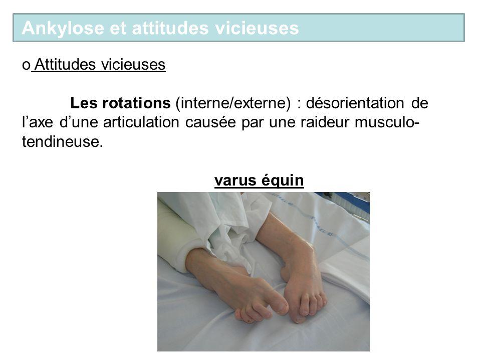 o Attitudes vicieuses Les rotations (interne/externe) : désorientation de laxe dune articulation causée par une raideur musculo- tendineuse.