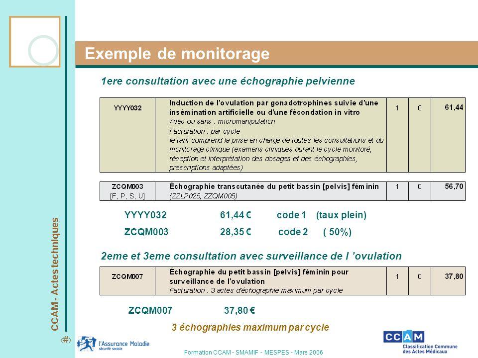 CCAM - Actes techniques 10 Formation CCAM - SMAMIF - MESPES - Mars 2006 Exemple de monitorage 1ere consultation avec une échographie pelvienne 2eme et