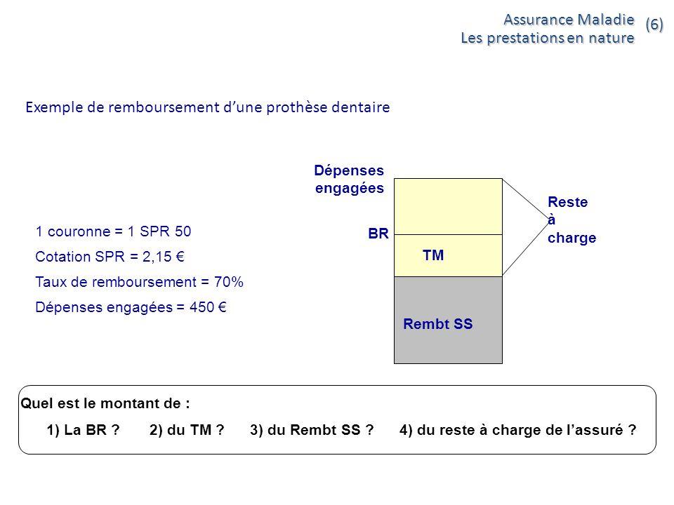 Exemple de remboursement dune prothèse dentaire Rembt SS TM Dépenses engagées Reste à charge BR 1 couronne = 1 SPR 50 Cotation SPR = 2,15 Taux de remb
