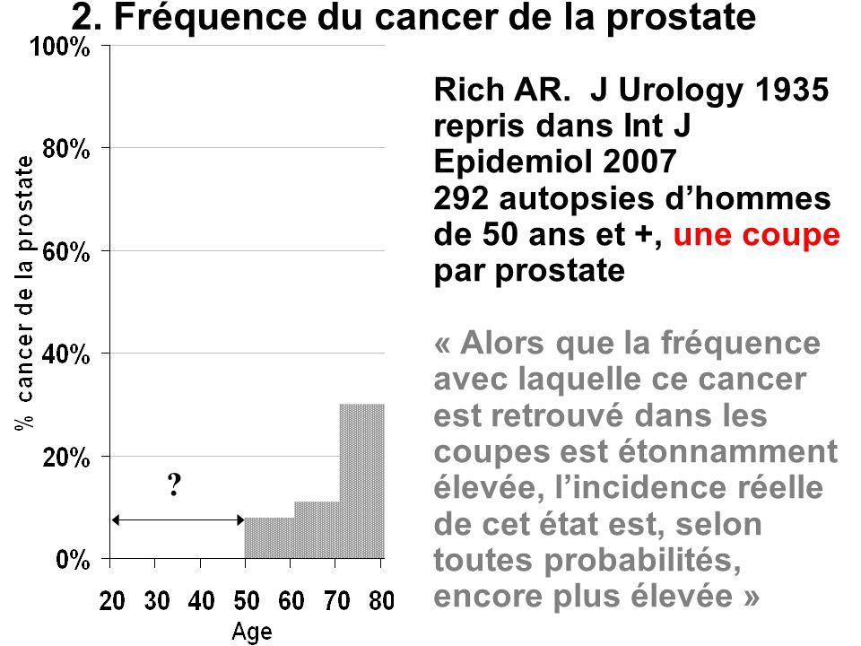 Rich AR. J Urology 1935 repris dans Int J Epidemiol 2007 292 autopsies dhommes de 50 ans et +, une coupe par prostate « Alors que la fréquence avec la