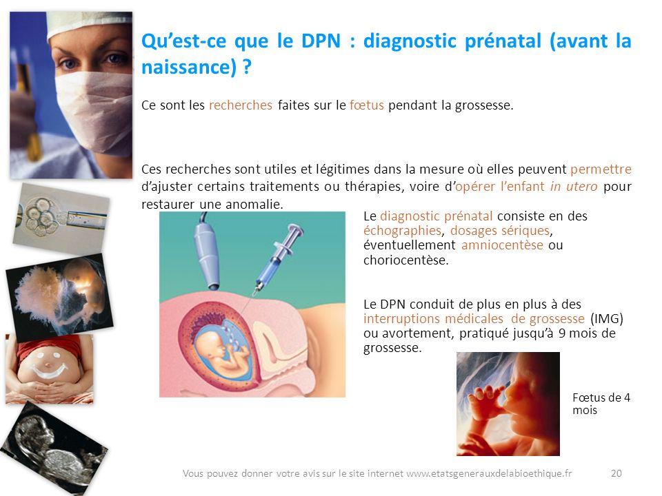 Quest-ce que le DPN : diagnostic prénatal (avant la naissance) ? Ce sont les recherches faites sur le fœtus pendant la grossesse. Ces recherches sont