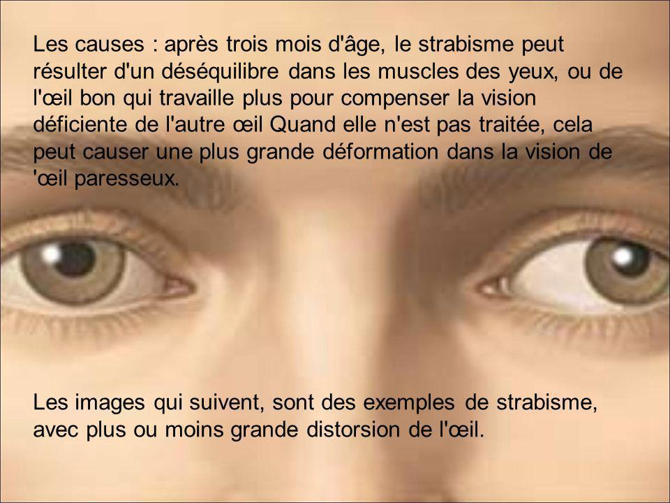 Les causes : après trois mois d âge, le strabisme peut résulter d un déséquilibre dans les muscles des yeux, ou de l œil bon qui travaille plus pour compenser la vision déficiente de l autre œil Quand elle n est pas traitée, cela peut causer une plus grande déformation dans la vision de œil paresseux.
