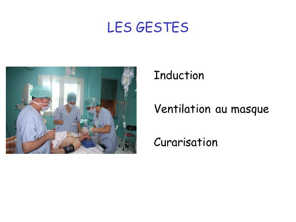 16 LES GESTES Induction Ventilation au masque Curarisation
