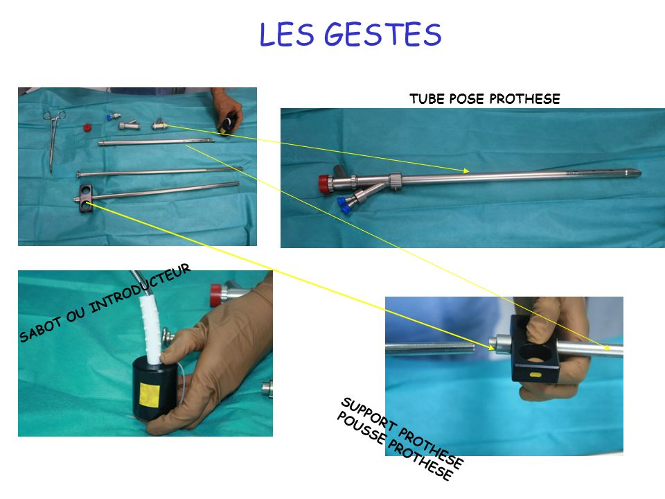21 LES GESTES SABOT OU INTRODUCTEUR SUPPORT PROTHESE POUSSE PROTHESE TUBE POSE PROTHESE