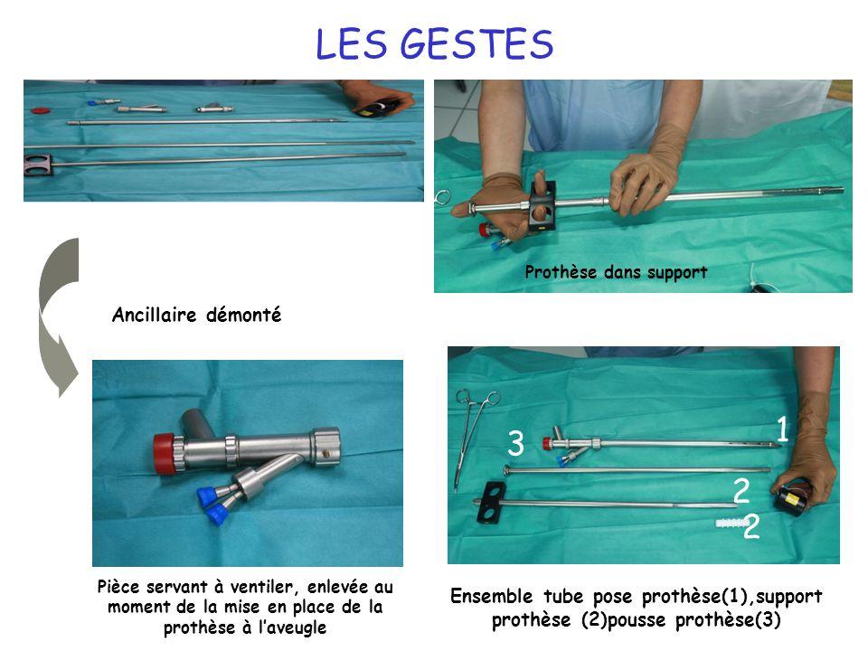 22 LES GESTES Ensemble tube pose prothèse(1),support prothèse (2)pousse prothèse(3) Ancillaire démonté Pièce servant à ventiler, enlevée au moment de