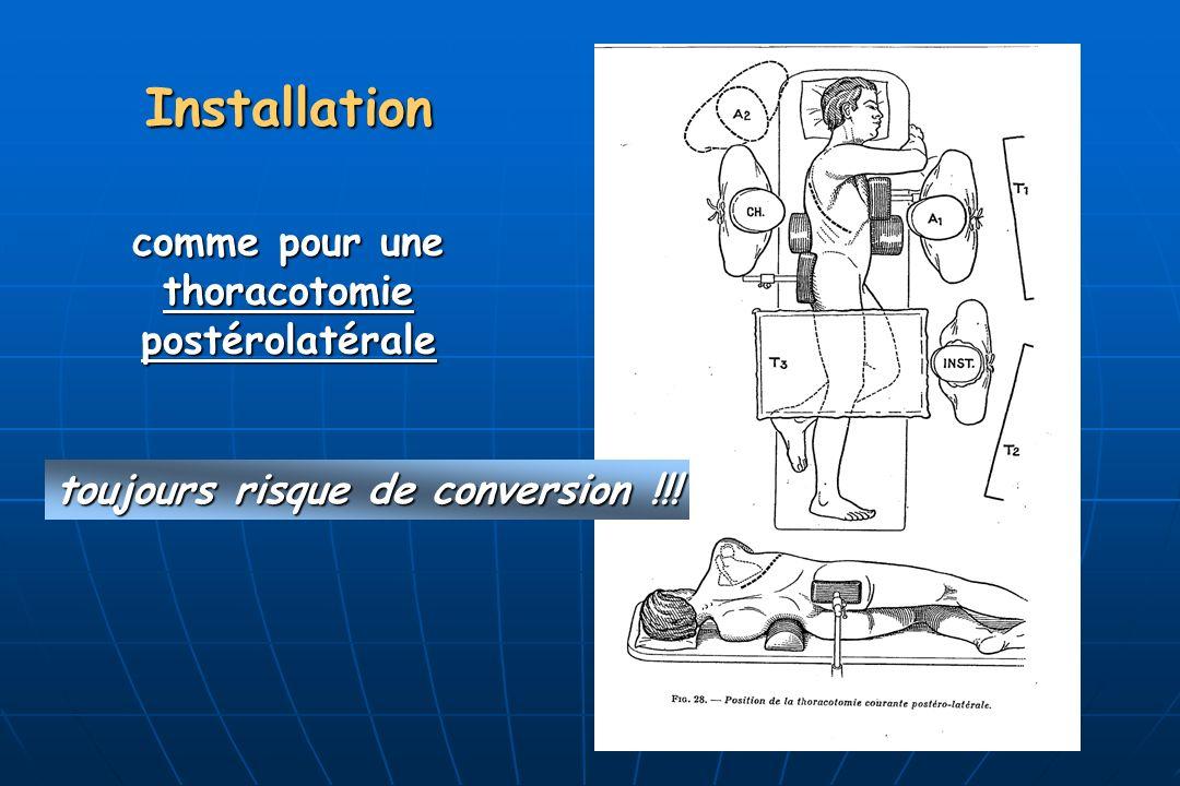 Installation comme pour une thoracotomiepostérolatérale toujours risque de conversion !!!