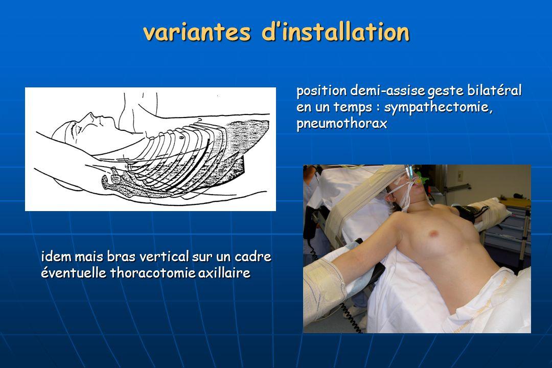variantes dinstallation idem mais bras vertical sur un cadre éventuelle thoracotomie axillaire position demi-assise geste bilatéral en un temps : sympathectomie, pneumothorax