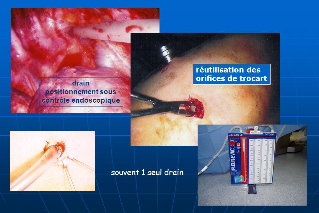 drain positionnement sous contrôle endoscopique réutilisation des orifices de trocart souvent 1 seul drain
