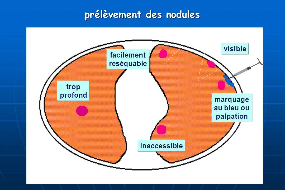 prélèvement des nodules marquage au bleu ou palpation visible inaccessible facilement reséquable trop profond