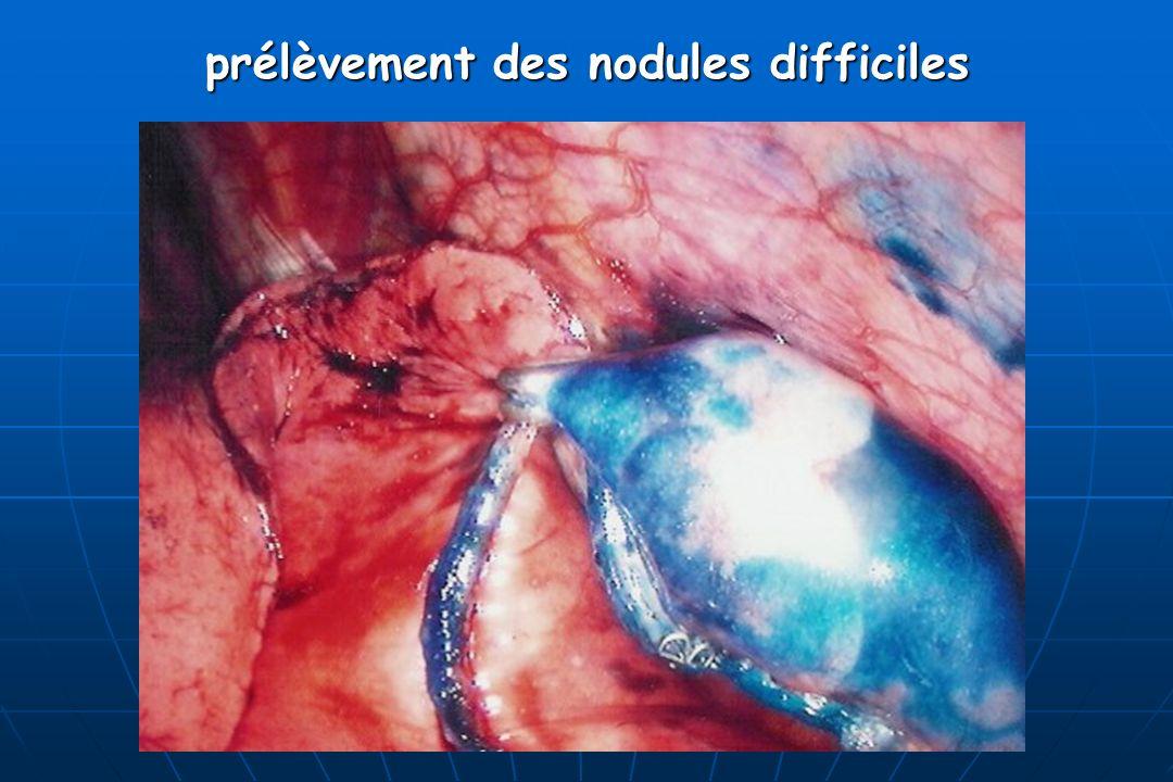 prélèvement des nodules difficiles