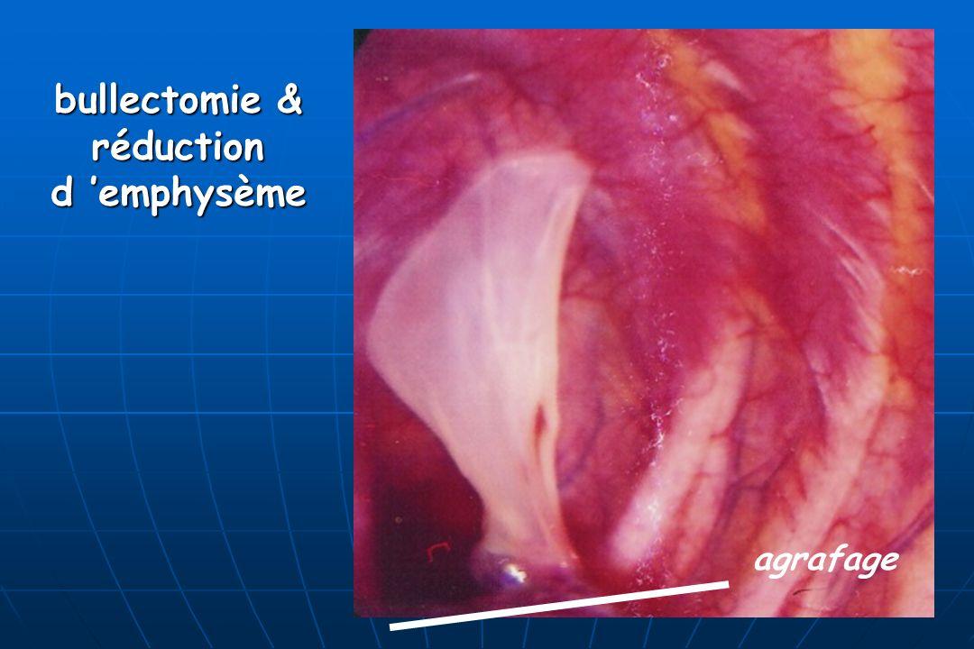 bullectomie & réductiond emphysème agrafage