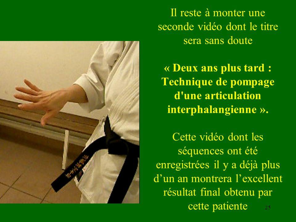 Il reste à monter une seconde vidéo dont le titre sera sans doute « Deux ans plus tard : Technique de pompage d'une articulation interphalangienne ».