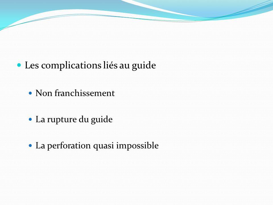 Les complications liés au guide Non franchissement La rupture du guide La perforation quasi impossible