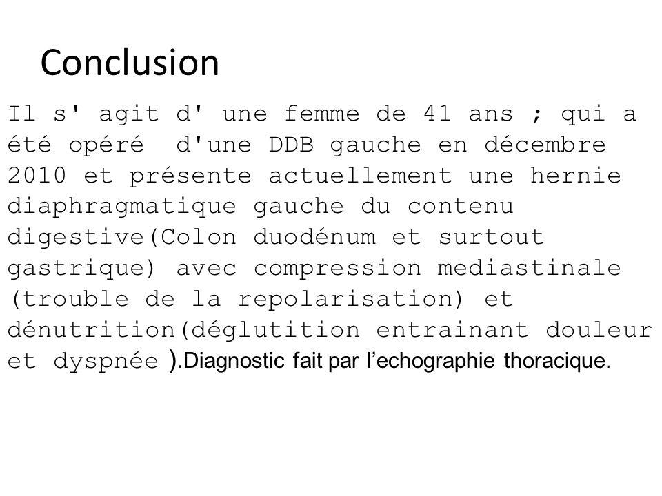 Conclusion Il s agit d une femme de 41 ans ; qui a été opéré d une DDB gauche en décembre 2010 et présente actuellement une hernie diaphragmatique gauche du contenu digestive(Colon duodénum et surtout gastrique) avec compression mediastinale (trouble de la repolarisation) et dénutrition(déglutition entrainant douleur et dyspnée ).
