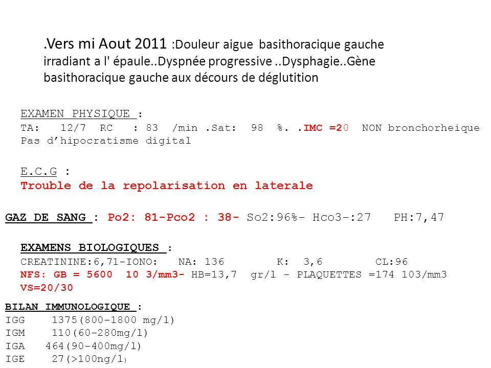 .Vers mi Aout 2011 :Douleur aigue basithoracique gauche irradiant a l épaule..Dyspnée progressive..Dysphagie..Gène basithoracique gauche aux décours de déglutition EXAMEN PHYSIQUE : TA: 12/7 RC : 83 /min.Sat: 98 %..IMC =20 NON bronchorheique Pas dhipocratisme digital E.C.G : Trouble de la repolarisation en laterale GAZ DE SANG : Po2: 81-Pco2 : 38- So2:96%- Hco3-:27 PH:7,47 EXAMENS BIOLOGIQUES : CREATININE:6,71-IONO: NA: 136 K: 3,6 CL:96 NFS: GB = 5600 10 3/mm3- HB=13,7 gr/l - PLAQUETTES =174 103/mm3 VS=20/30 BILAN IMMUNOLOGIQUE : IGG 1375(800-1800 mg/l) IGM 110(60-280mg/l) IGA 464(90-400mg/l) IGE 27(>100ng/l )