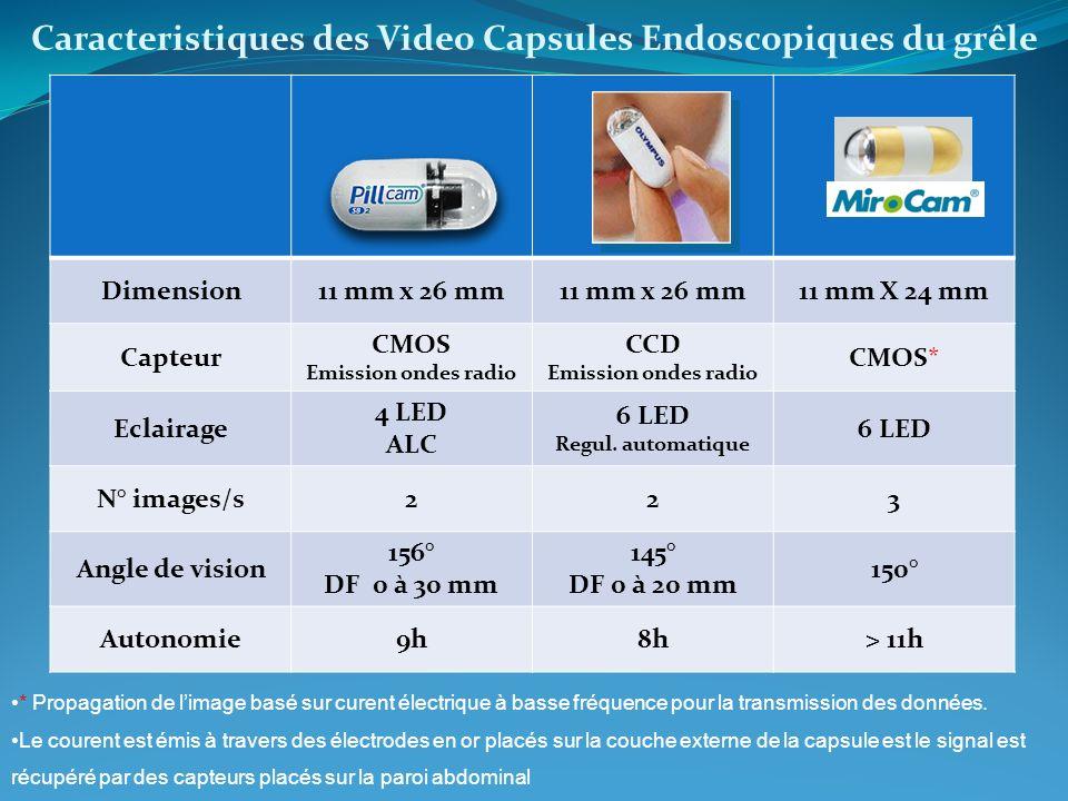 Caracteristiques des Video Capsules Endoscopiques du grêle * Propagation de limage basé sur curent électrique à basse fréquence pour la transmission d