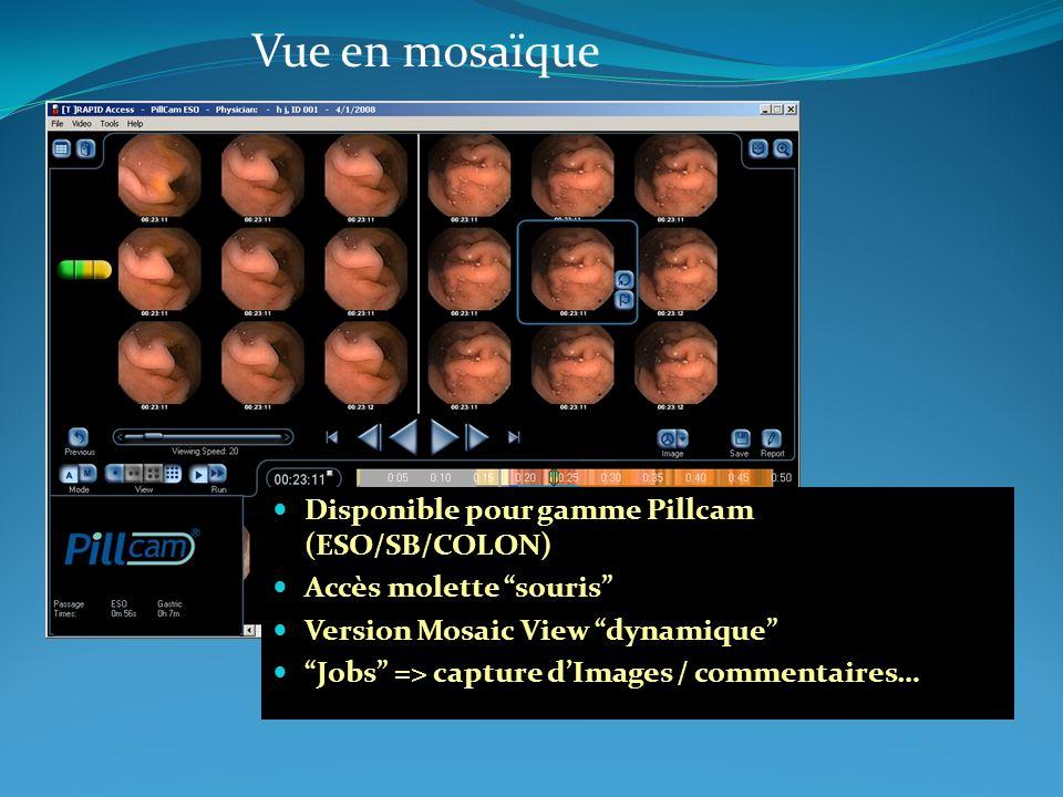 Disponible pour gamme Pillcam (ESO/SB/COLON) Accès molette souris Version Mosaic View dynamique Jobs => capture dImages / commentaires… Vue en mosaïqu