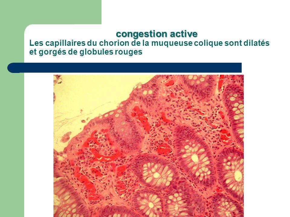 congestion active congestion active Les capillaires du chorion de la muqueuse colique sont dilatés et gorgés de globules rouges