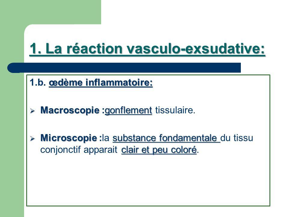 1. La réaction vasculo-exsudative: œdème inflammatoire: 1.b. œdème inflammatoire: Macroscopie gonflement Macroscopie :gonflement tissulaire. Microscop