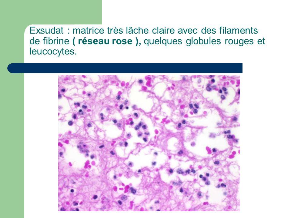 Exsudat : matrice très lâche claire avec des filaments de fibrine ( réseau rose ), quelques globules rouges et leucocytes.