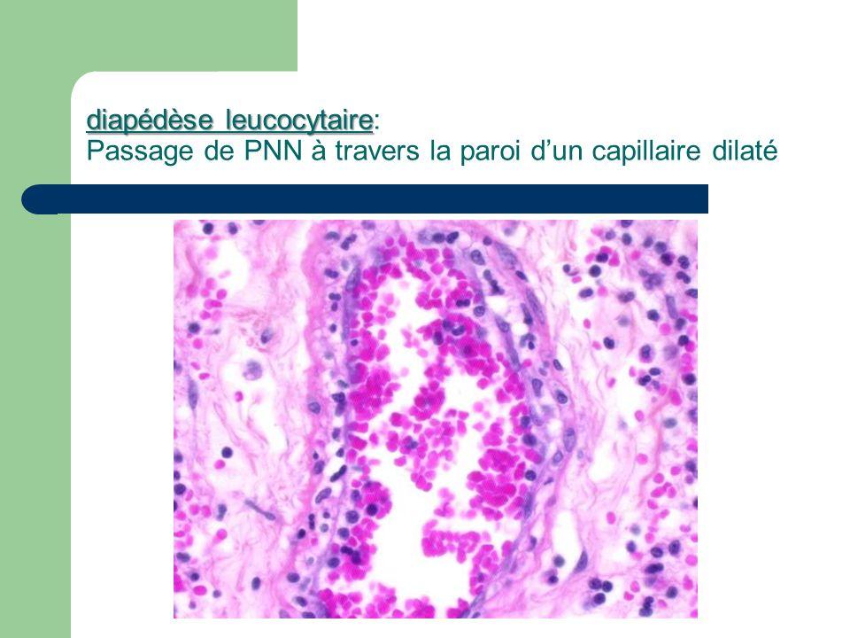 diapédèse leucocytaire diapédèse leucocytaire: Passage de PNN à travers la paroi dun capillaire dilaté