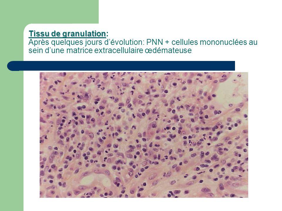 Tissu de granulation Tissu de granulation: Après quelques jours dévolution: PNN + cellules mononuclées au sein dune matrice extracellulaire œdémateuse