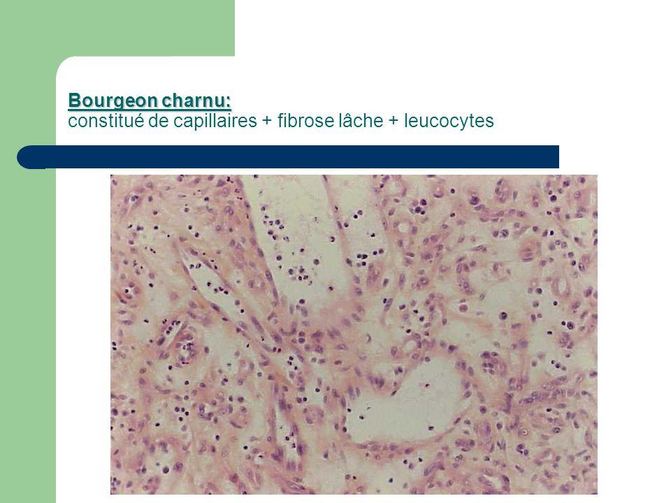 Bourgeon charnu: Bourgeon charnu: constitué de capillaires + fibrose lâche + leucocytes