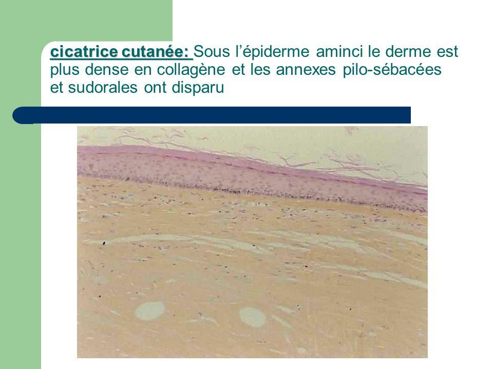 cicatrice cutanée: cicatrice cutanée: Sous lépiderme aminci le derme est plus dense en collagène et les annexes pilo-sébacées et sudorales ont disparu