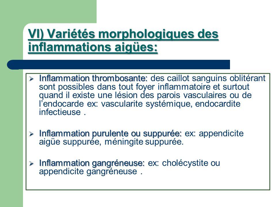 VI) Variétés morphologiques des inflammations aigües: Inflammation thrombosante: Inflammation thrombosante: des caillot sanguins oblitérant sont possi